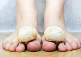 Tratamientos Hongos en los pies
